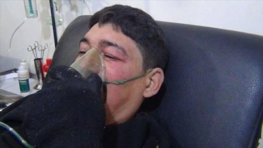 napad-otrovnim-gasom-u-siriji-poginulo-deset-_trt-bosanski-59842